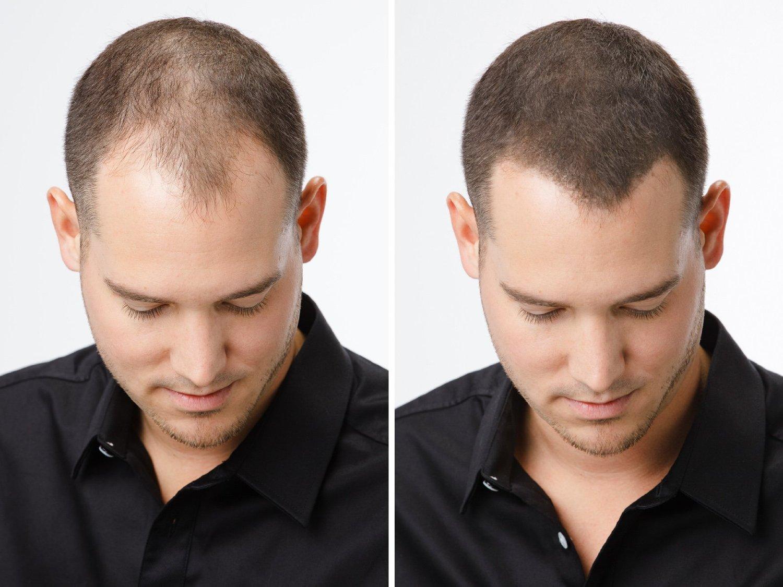 Repouse cheveux homme, des produits miracles?